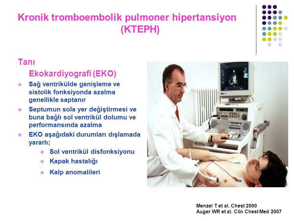 Kronik tromboembolik pulmoner hipertansiyon (KTEPH) Tanı Ekokardiyografi (EKO)  Sağ ventrikülde genişleme ve sistolik fonksiyonda azalma genellikle s