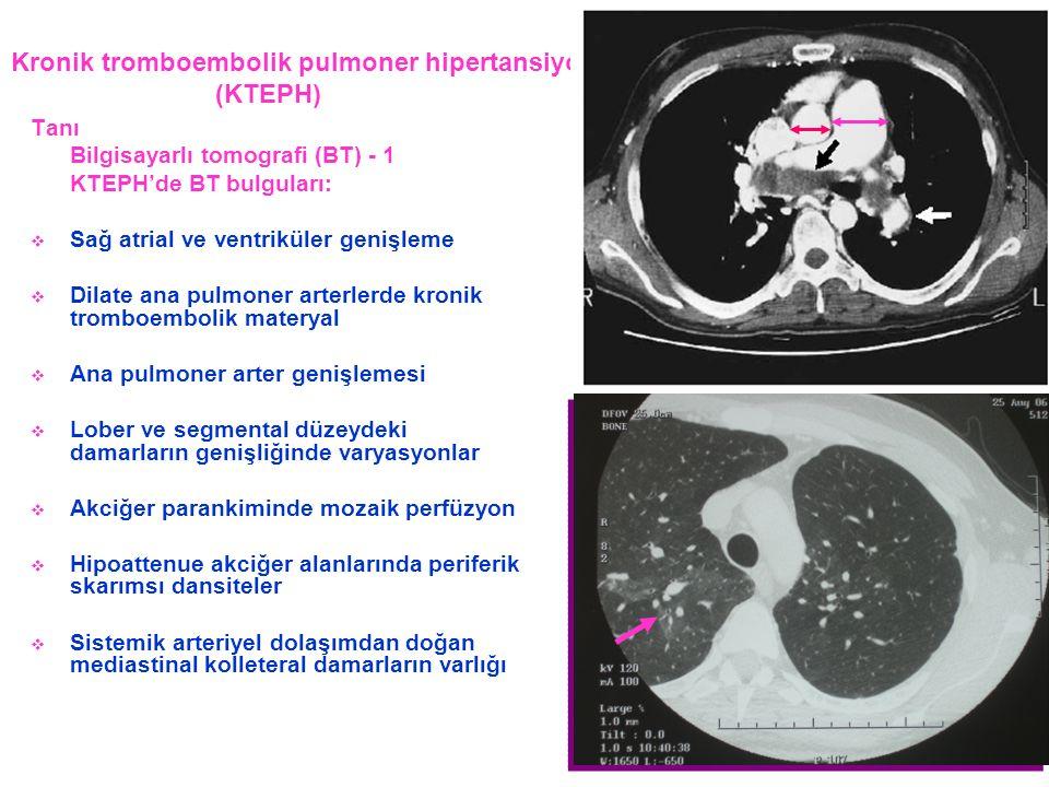 Kronik tromboembolik pulmoner hipertansiyon (KTEPH) Tanı Bilgisayarlı tomografi (BT) - 1 KTEPH'de BT bulguları:  Sağ atrial ve ventriküler genişleme