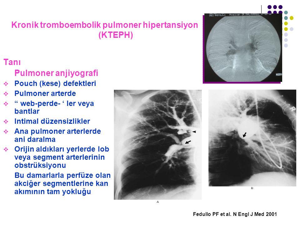 "Kronik tromboembolik pulmoner hipertansiyon (KTEPH) Tanı Pulmoner anjiyografi  Pouch (kese) defektleri  Pulmoner arterde  "" web-perde- ' ler veya b"