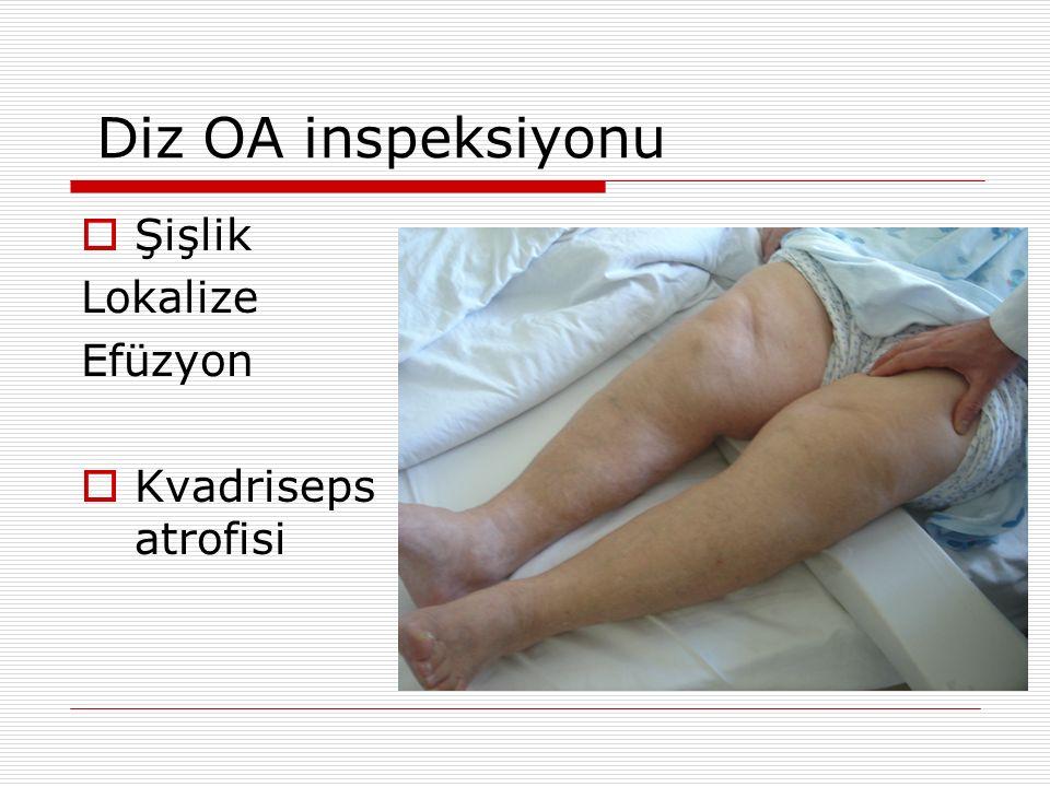 Diz OA inspeksiyonu  Şişlik Lokalize Efüzyon  Kvadriseps atrofisi