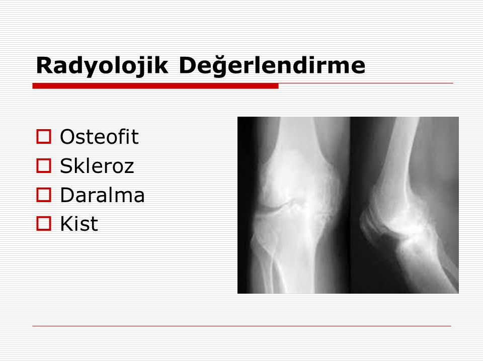 Radyolojik Değerlendirme  Osteofit  Skleroz  Daralma  Kist