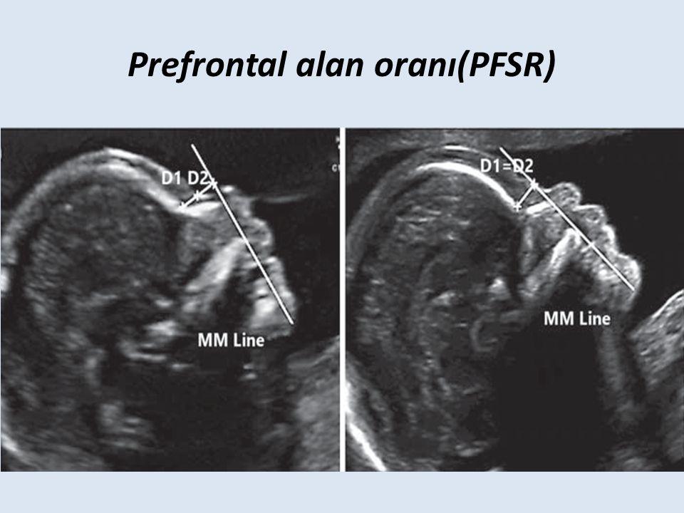 Prefrontal alan oranı(PFSR)