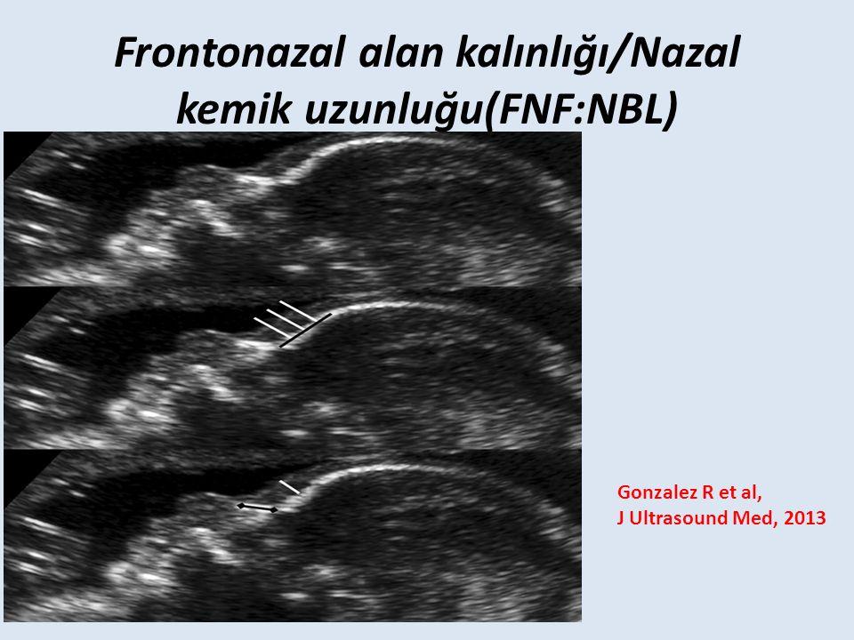 Frontonazal alan kalınlığı/Nazal kemik uzunluğu(FNF:NBL) Gonzalez R et al, J Ultrasound Med, 2013
