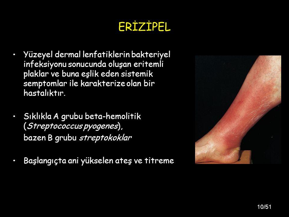 10/51 ERİZİPEL Yüzeyel dermal lenfatiklerin bakteriyel infeksiyonu sonucunda oluşan eritemli plaklar ve buna eşlik eden sistemik semptomlar ile karakterize olan bir hastalıktır.