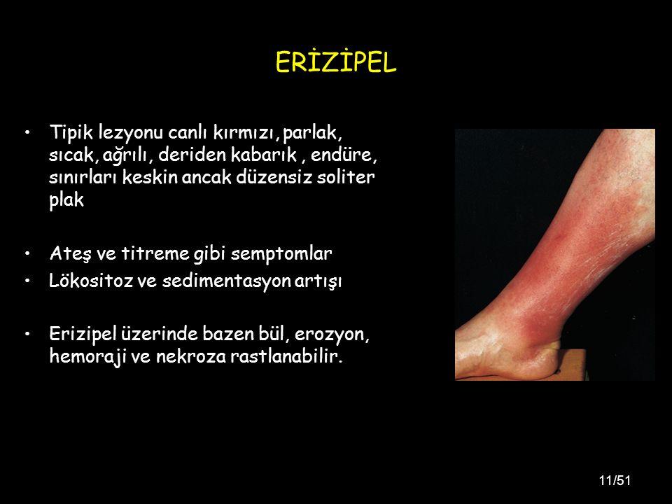 11/51 ERİZİPEL Tipik lezyonu canlı kırmızı, parlak, sıcak, ağrılı, deriden kabarık, endüre, sınırları keskin ancak düzensiz soliter plak Ateş ve titreme gibi semptomlar Lökositoz ve sedimentasyon artışı Erizipel üzerinde bazen bül, erozyon, hemoraji ve nekroza rastlanabilir.