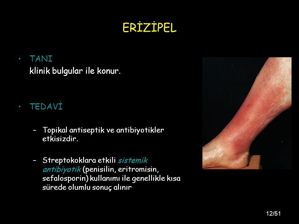 12/51 ERİZİPEL TANI klinik bulgular ile konur.