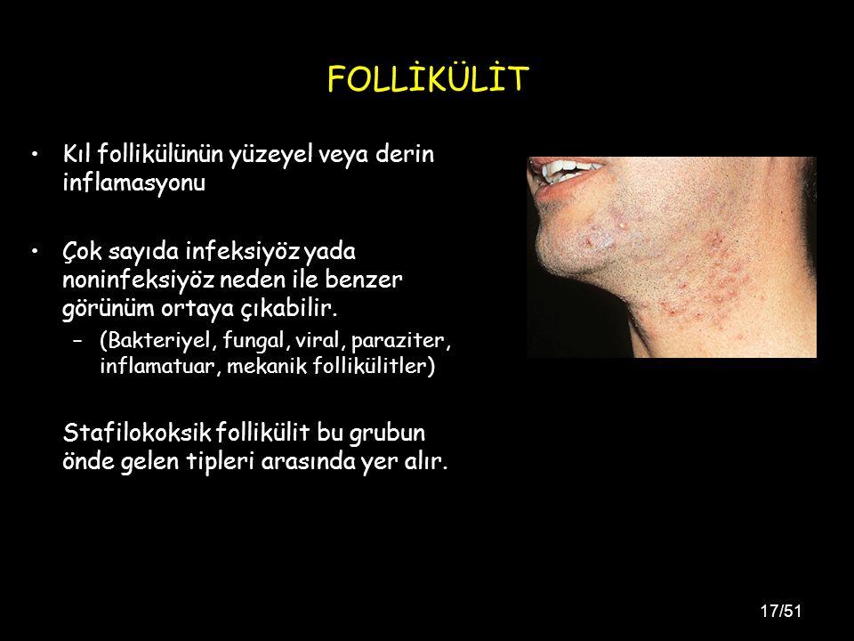 17/51 FOLLİKÜLİT Kıl follikülünün yüzeyel veya derin inflamasyonu Çok sayıda infeksiyöz yada noninfeksiyöz neden ile benzer görünüm ortaya çıkabilir.