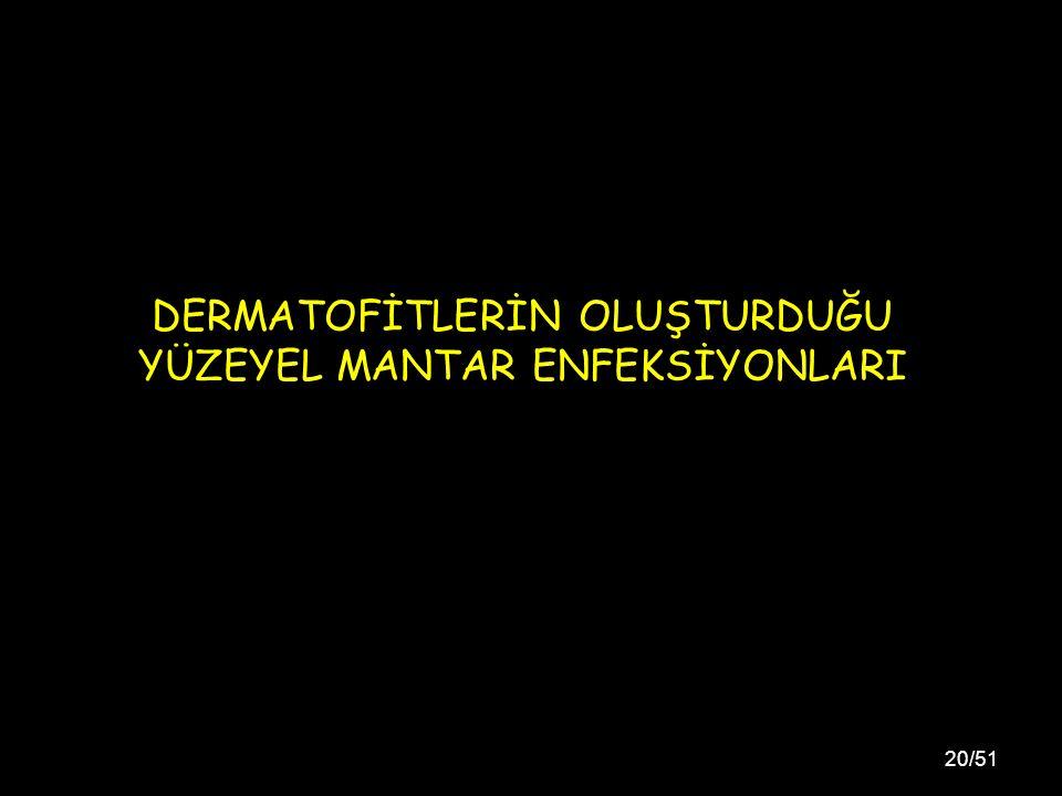 20/51 DERMATOFİTLERİN OLUŞTURDUĞU YÜZEYEL MANTAR ENFEKSİYONLARI