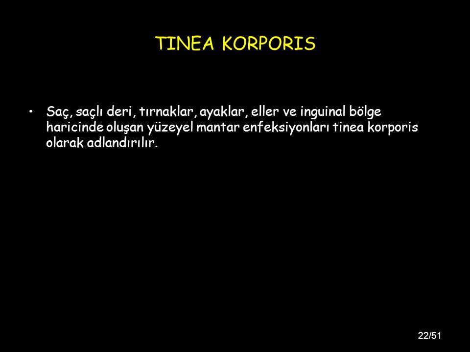 22/51 TINEA KORPORIS Saç, saçlı deri, tırnaklar, ayaklar, eller ve inguinal bölge haricinde oluşan yüzeyel mantar enfeksiyonları tinea korporis olarak adlandırılır.