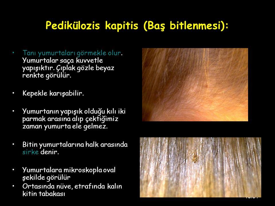 40/51 Pedikülozis kapitis (Baş bitlenmesi): Tanı yumurtaları görmekle olur.