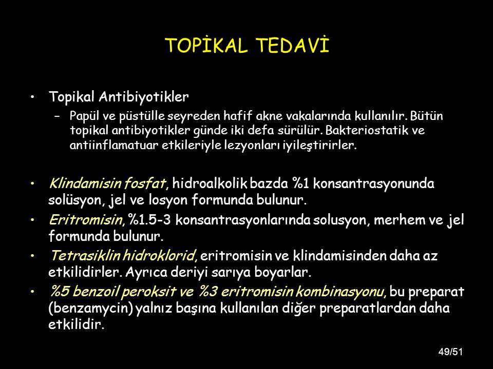 49/51 TOPİKAL TEDAVİ Topikal Antibiyotikler –Papül ve püstülle seyreden hafif akne vakalarında kullanılır.