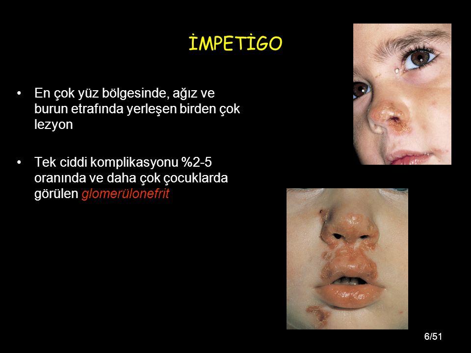 6/51 İMPETİGO En çok yüz bölgesinde, ağız ve burun etrafında yerleşen birden çok lezyon Tek ciddi komplikasyonu %2-5 oranında ve daha çok çocuklarda görülen glomerülonefrit