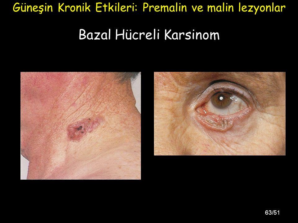 63/51 Bazal Hücreli Karsinom Güneşin Kronik Etkileri: Premalin ve malin lezyonlar