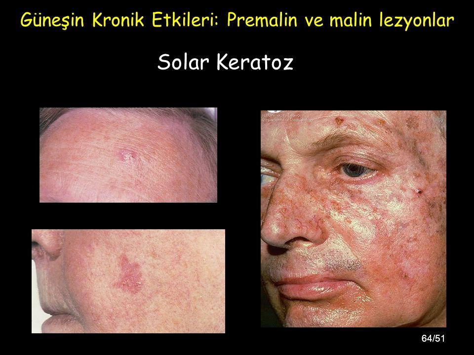 64/51 Solar Keratoz Güneşin Kronik Etkileri: Premalin ve malin lezyonlar