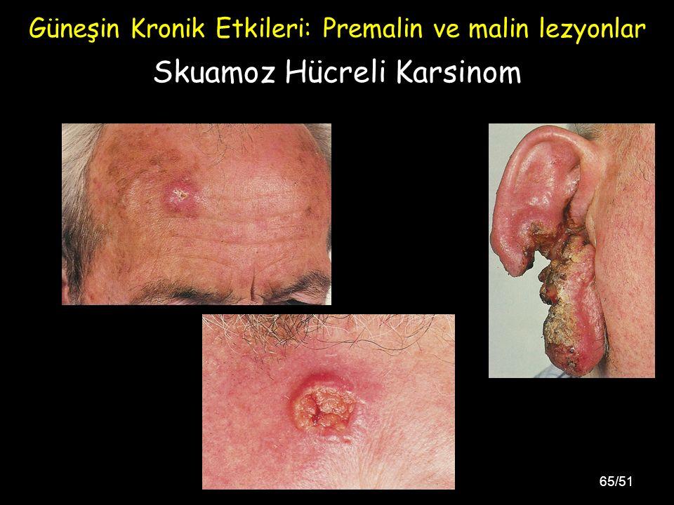 65/51 Skuamoz Hücreli Karsinom Güneşin Kronik Etkileri: Premalin ve malin lezyonlar