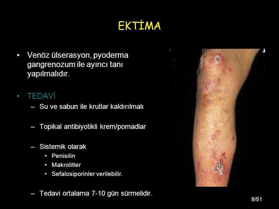 9/51 EKTİMA Venöz ülserasyon, pyoderma gangrenozum ile ayırıcı tanı yapılmalıdır.