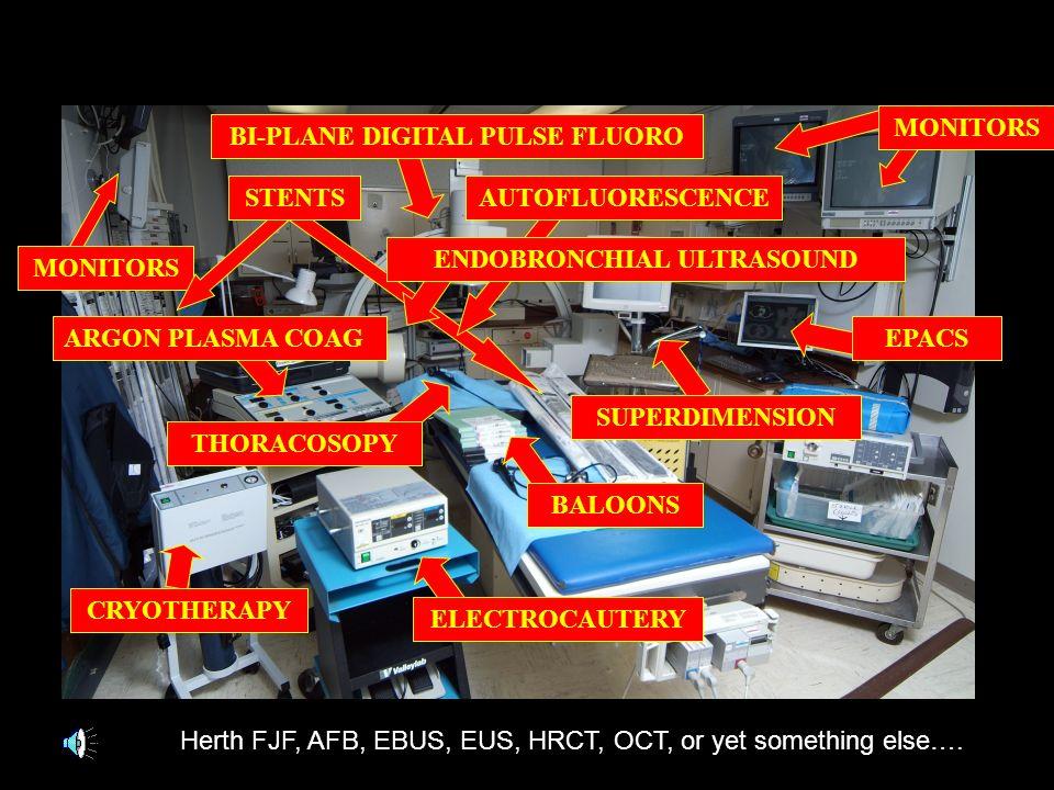 ELECTROCAUTERY CRYOTHERAPY BALOONS MONITORS BI-PLANE DIGITAL PULSE FLUOROSTENTSAUTOFLUORESCENCE ENDOBRONCHIAL ULTRASOUND ARGON PLASMA COAG THORACOSOPY