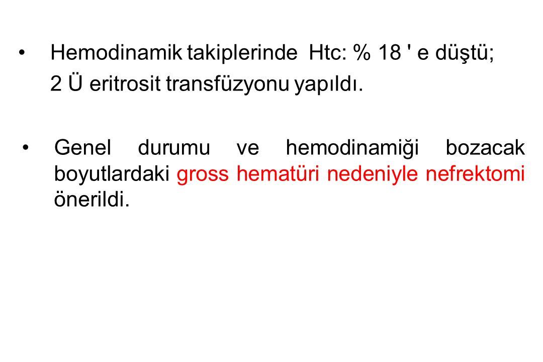 Hemodinamik takiplerinde Htc: % 18 e düştü; 2 Ü eritrosit transfüzyonu yapıldı.