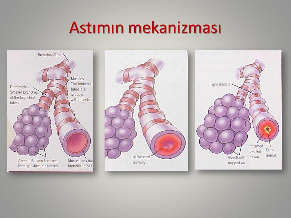 Yeni tanı alan hastada öyküde dikkat edilmesi gereken konular 1.Semptomlar 2.Semptomun seyri 3.Etkileyen faktörler 4.Hastalık ve tedavinin öyküsü 5.Aile öyküsü 6.Sosyal öykü 7.Atak öyküsü 8.Hasta ve ailenin uyum öyküsü 9.Hastalığın algılaması ve yönetimi öyküsü National Asthma Education Program Expert Panel Report:NIH/National heart,Lung,and blood Instutitude 2007