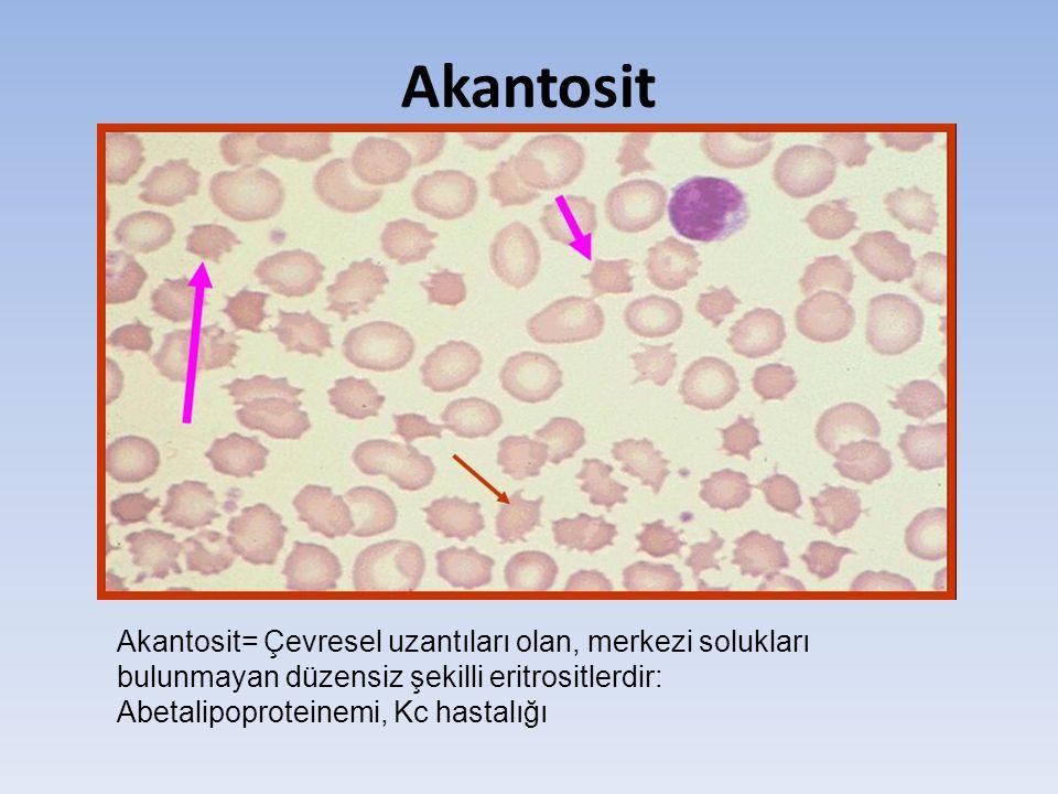 Akantosit Akantosit= Çevresel uzantıları olan, merkezi solukları bulunmayan düzensiz şekilli eritrositlerdir: Abetalipoproteinemi, Kc hastalığı