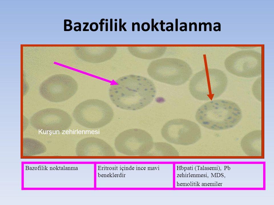 Bazofilik noktalanma Kurşun zehirlenmesi Bazofilik noktalanmaEritrosit içinde ince mavi beneklerdir Hbpati (Talasemi), Pb zehirlenmesi, MDS, hemolitik