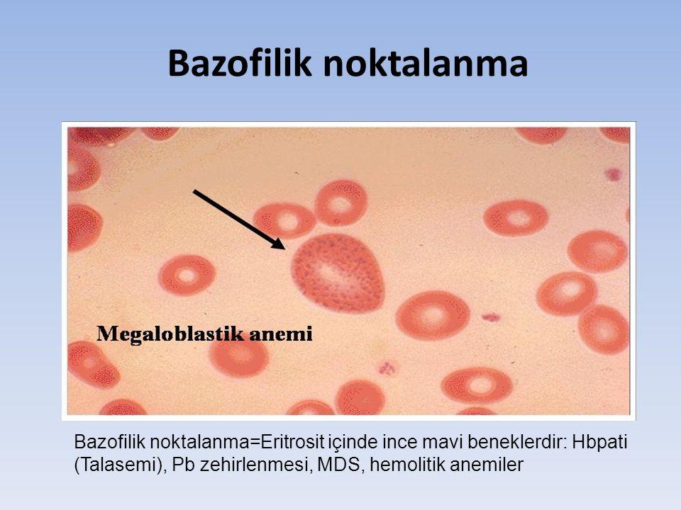 Bazofilik noktalanma Bazofilik noktalanma=Eritrosit içinde ince mavi beneklerdir: Hbpati (Talasemi), Pb zehirlenmesi, MDS, hemolitik anemiler