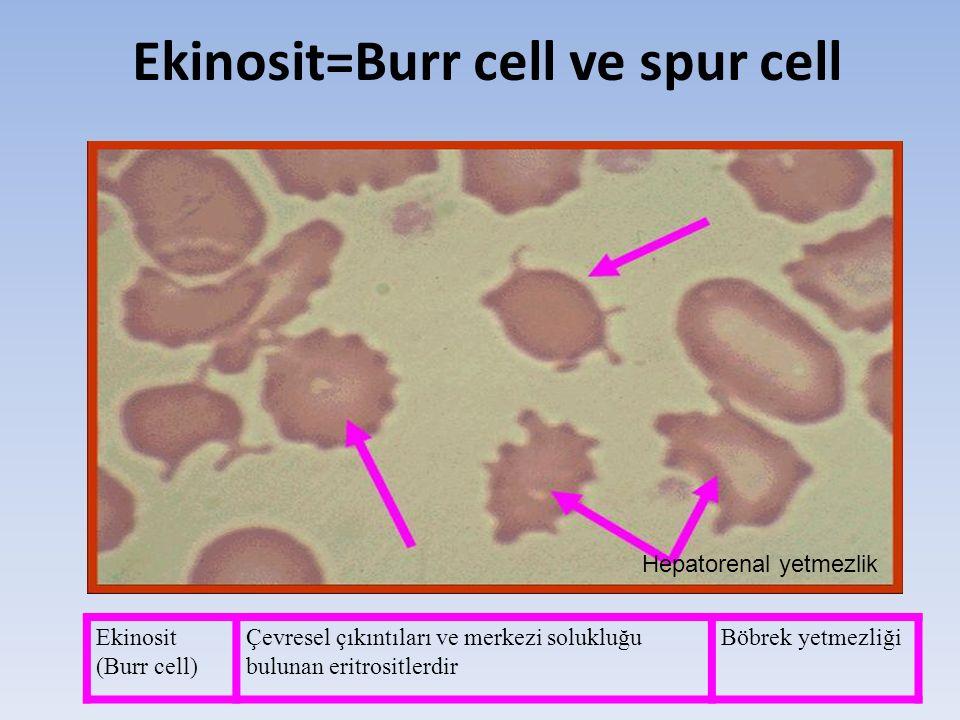 Ekinosit=Burr cell ve spur cell Hepatorenal yetmezlik Ekinosit (Burr cell) Çevresel çıkıntıları ve merkezi solukluğu bulunan eritrositlerdir Böbrek ye