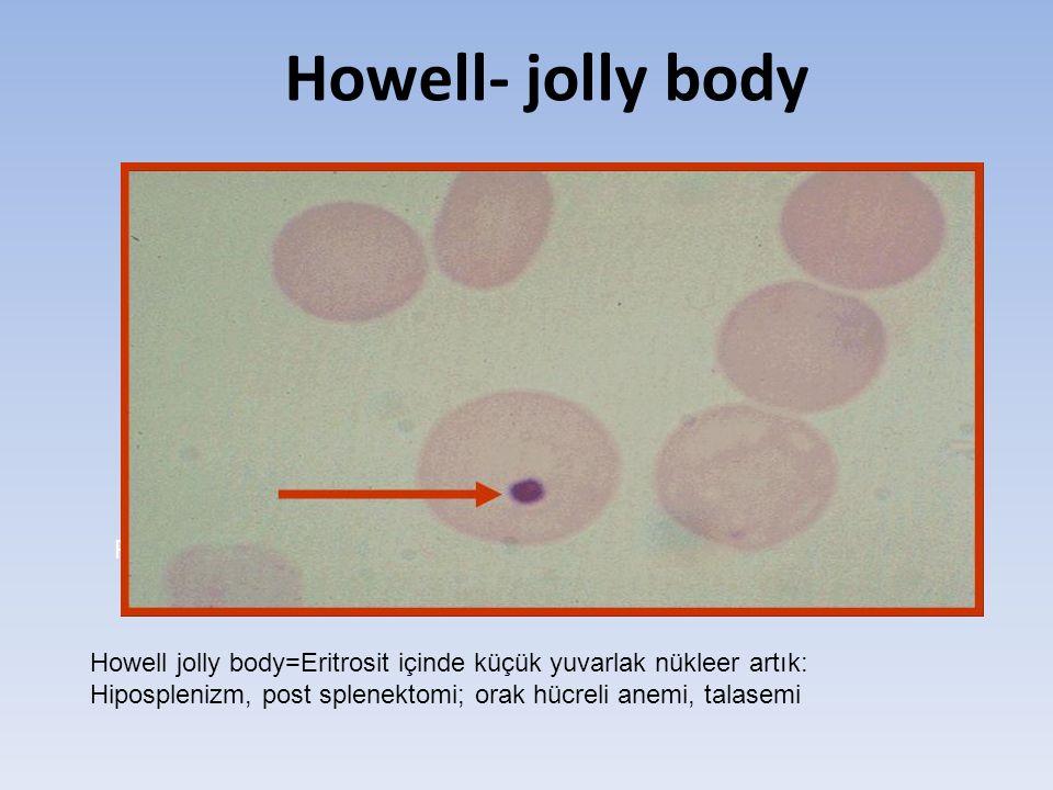 Howell- jolly body Post-splenektomili bir hasta, Howell jolly body=Eritrosit içinde küçük yuvarlak nükleer artık: Hiposplenizm, post splenektomi; orak hücreli anemi, talasemi