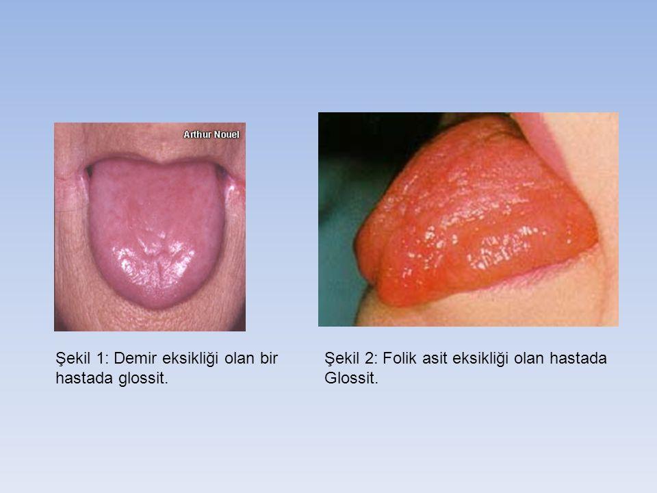 Şekil 1: Demir eksikliği olan bir hastada glossit. Şekil 2: Folik asit eksikliği olan hastada Glossit.