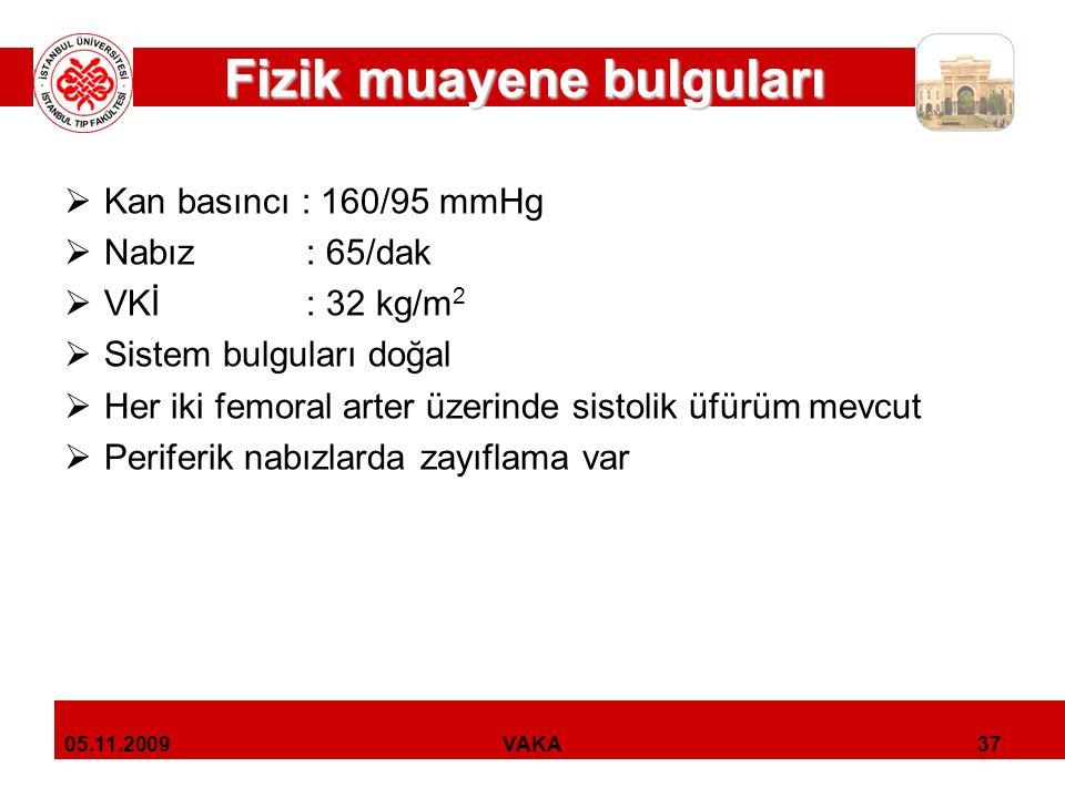 Laboratuvar bulguları Laboratuvar bulguları  Hemogram, tiroid ve KC testleri normal  BUN: 35 mg/dl  Kreatinin: 2.4 mg/dl  AKŞ: 84 mg/dl  Lipid parametreleri:  Total kolesterol: 182 mg/dl  LDL kolesterol: 132 mg/dl  HDL kolesterol: 38 mg/dl  TG: 165 mg/dl  Serum elektrolit düzeyleri normal (K: 4.2 mEq/l)  İdrar analizi:  İdrar albumin düzeyi: 260 mg/gün 38VAKA05.11.2009