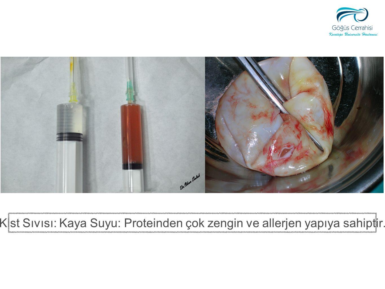 Kist Sıvısı: Kaya Suyu: Proteinden çok zengin ve allerjen yapıya sahiptir.