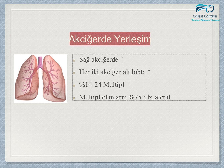 Sağ akciğerde ↑ Her iki akciğer alt lobta ↑ %14-24 Multipl Multipl olanların %75'i bilateral Akciğerde Yerleşim