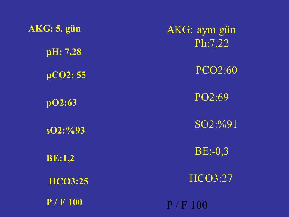 AKG: 5.