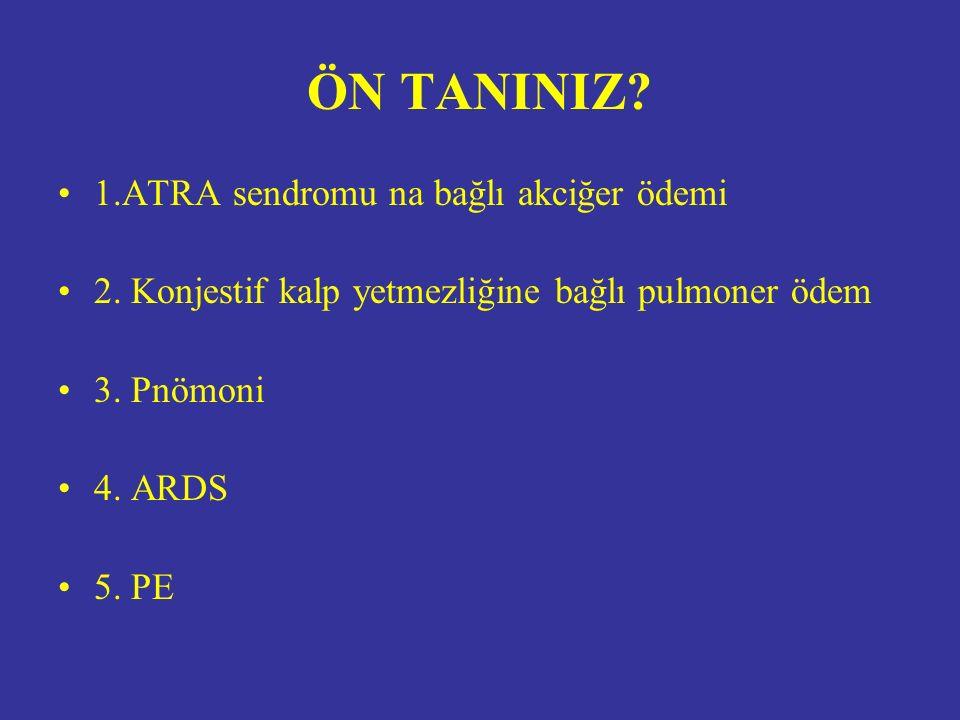 ÖN TANINIZ. 1.ATRA sendromu na bağlı akciğer ödemi 2.