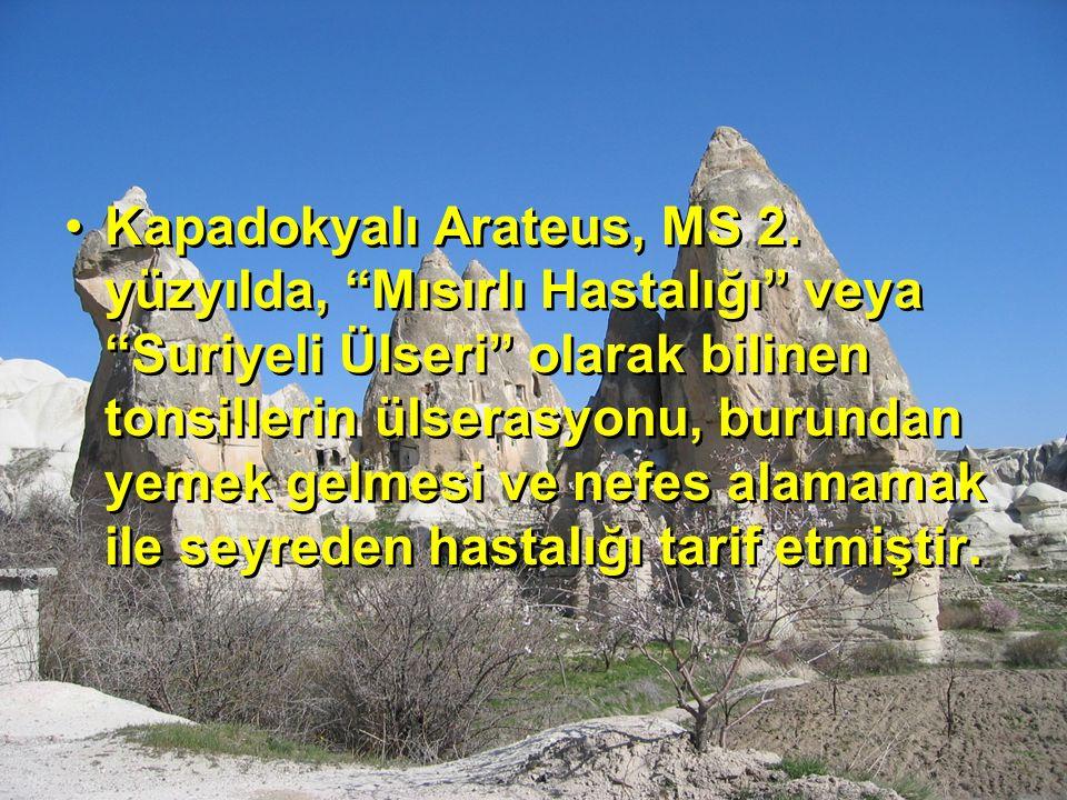 """Kapadokyalı Arateus, MS 2. yüzyılda, """"Mısırlı Hastalığı"""" veya """"Suriyeli Ülseri"""" olarak bilinen tonsillerin ülserasyonu, burundan yemek gelmesi ve nefe"""