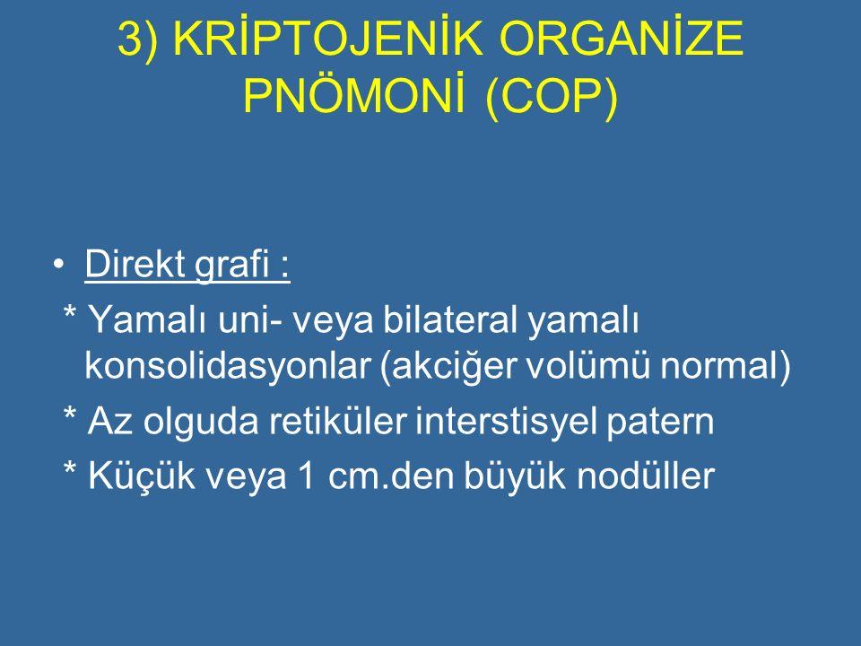 3) KRİPTOJENİK ORGANİZE PNÖMONİ (COP) Direkt grafi : * Yamalı uni- veya bilateral yamalı konsolidasyonlar (akciğer volümü normal) * Az olguda retiküle