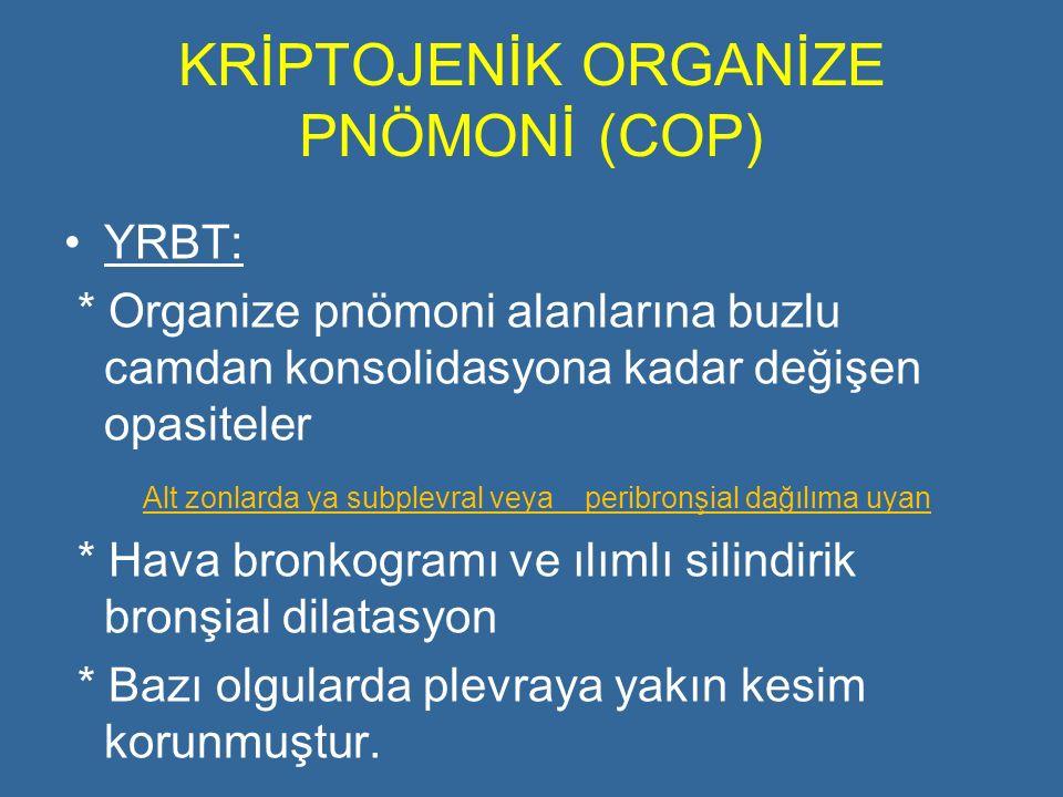KRİPTOJENİK ORGANİZE PNÖMONİ (COP) YRBT: * Organize pnömoni alanlarına buzlu camdan konsolidasyona kadar değişen opasiteler Alt zonlarda ya subplevral