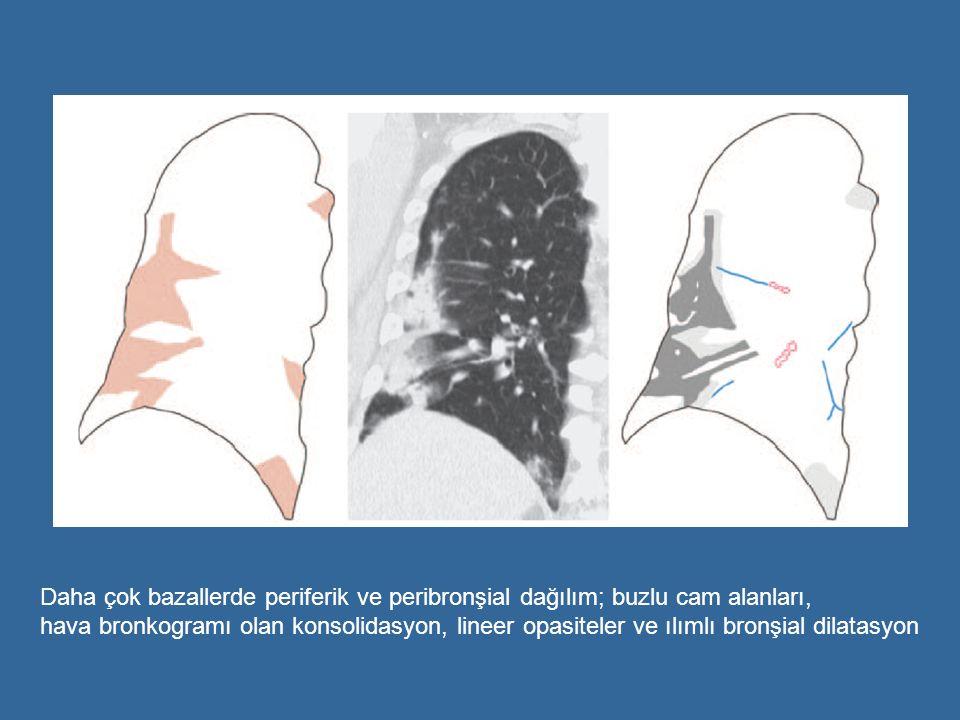 Daha çok bazallerde periferik ve peribronşial dağılım; buzlu cam alanları, hava bronkogramı olan konsolidasyon, lineer opasiteler ve ılımlı bronşial d