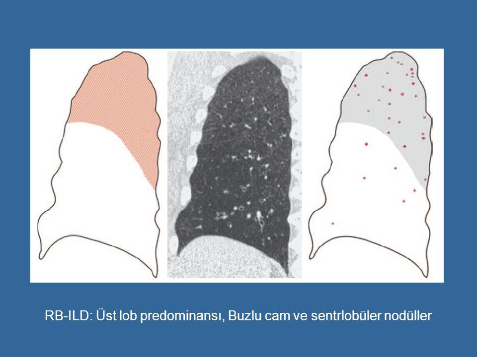 RB-ILD: Üst lob predominansı, Buzlu cam ve sentrlobüler nodüller