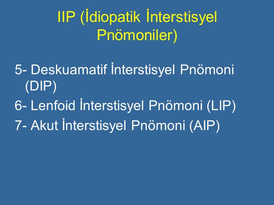 IIP (İdiopatik İnterstisyel Pnömoniler) 5- Deskuamatif İnterstisyel Pnömoni (DIP) 6- Lenfoid İnterstisyel Pnömoni (LIP) 7- Akut İnterstisyel Pnömoni (