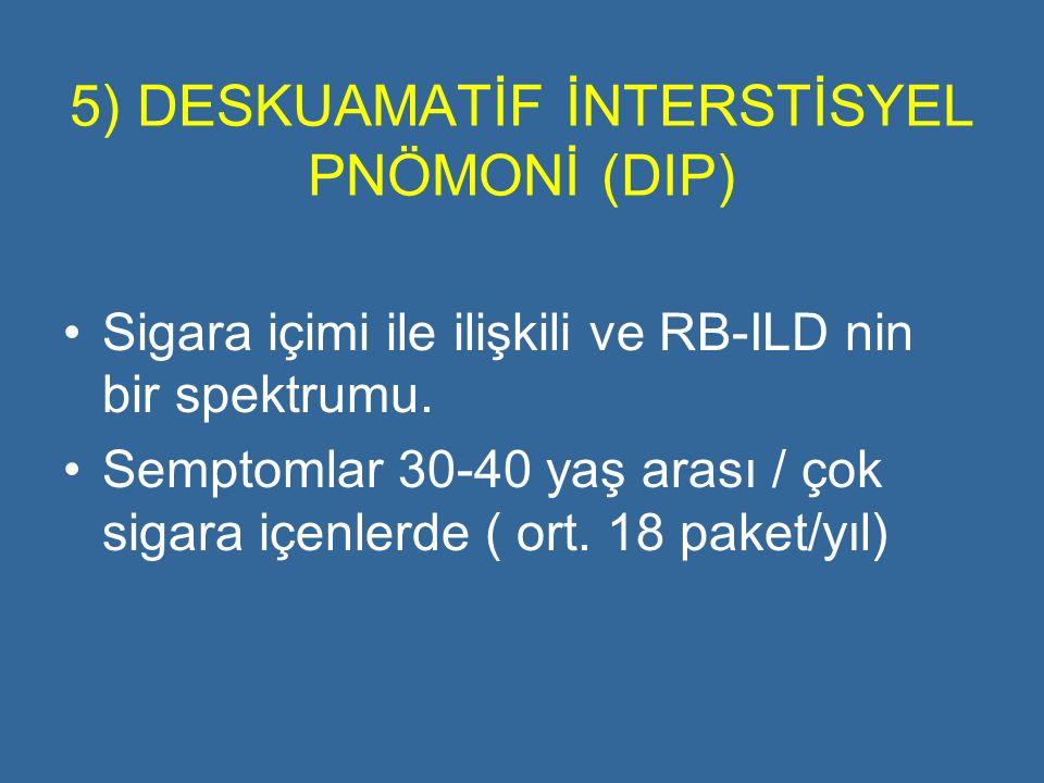 5) DESKUAMATİF İNTERSTİSYEL PNÖMONİ (DIP) Sigara içimi ile ilişkili ve RB-ILD nin bir spektrumu. Semptomlar 30-40 yaş arası / çok sigara içenlerde ( o