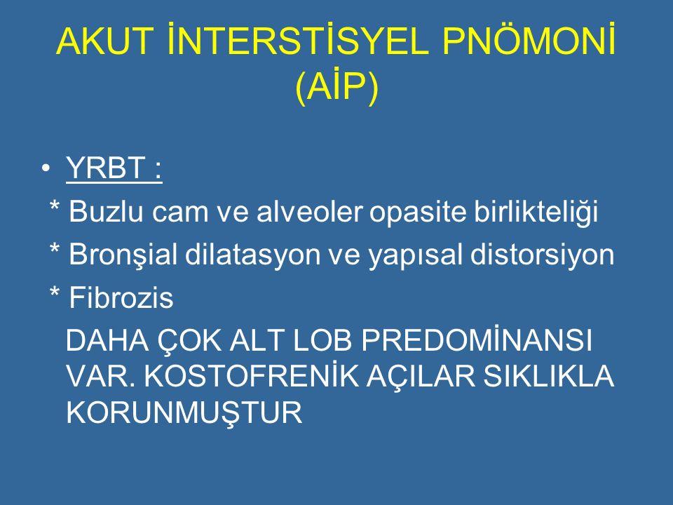 AKUT İNTERSTİSYEL PNÖMONİ (AİP) YRBT : * Buzlu cam ve alveoler opasite birlikteliği * Bronşial dilatasyon ve yapısal distorsiyon * Fibrozis DAHA ÇOK A