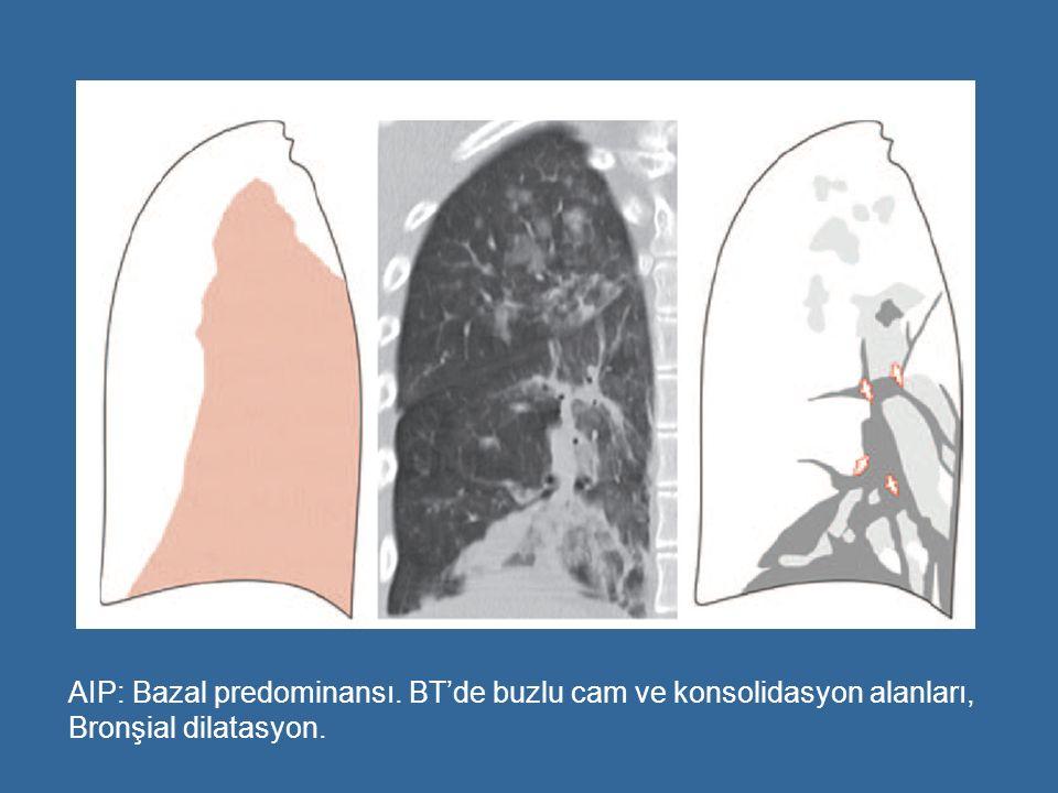 AIP: Bazal predominansı. BT'de buzlu cam ve konsolidasyon alanları, Bronşial dilatasyon.