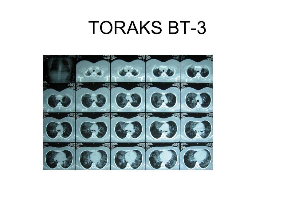 TORAKS BT-3