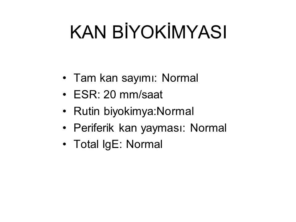 KAN BİYOKİMYASI Tam kan sayımı: Normal ESR: 20 mm/saat Rutin biyokimya:Normal Periferik kan yayması: Normal Total IgE: Normal