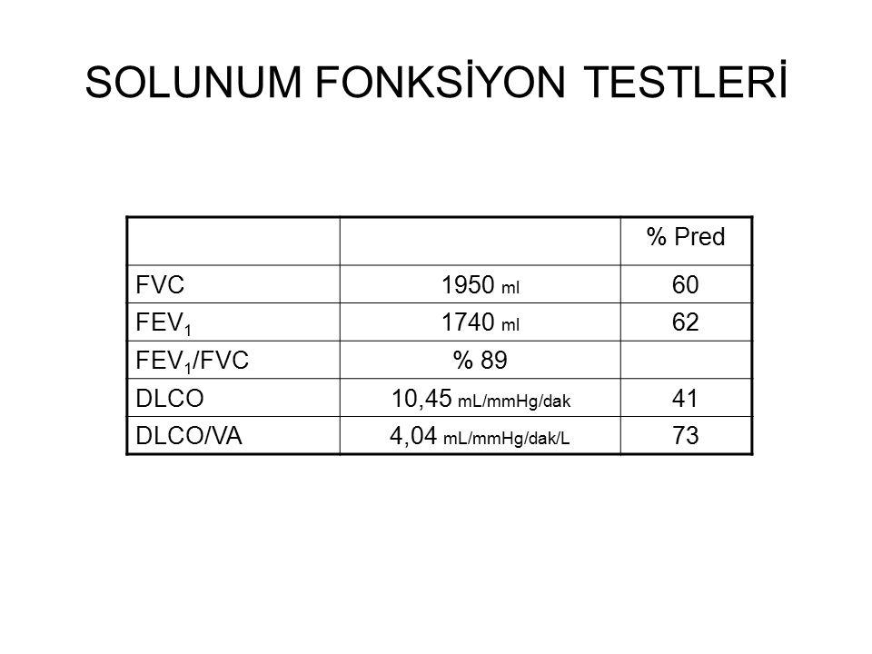 SOLUNUM FONKSİYON TESTLERİ % Pred FVC1950 ml 60 FEV 1 1740 ml 62 FEV 1 /FVC% 89 DLCO10,45 mL/mmHg/dak 41 DLCO/VA4,04 mL/mmHg/dak/L 73