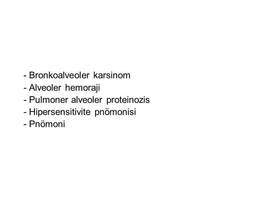 - Bronkoalveoler karsinom - Alveoler hemoraji - Pulmoner alveoler proteinozis - Hipersensitivite pnömonisi - Pnömoni