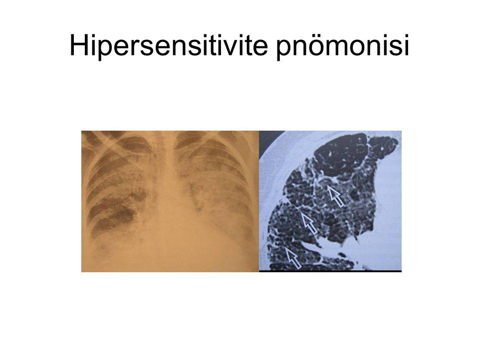 Hipersensitivite pnömonisi
