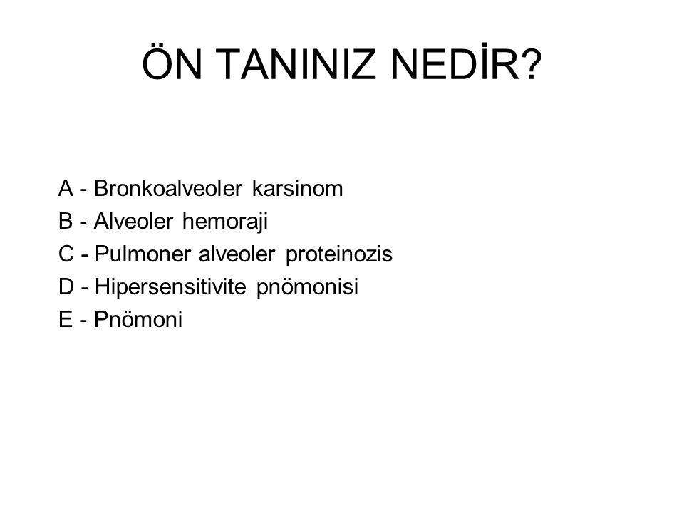 ÖN TANINIZ NEDİR? A - Bronkoalveoler karsinom B - Alveoler hemoraji C - Pulmoner alveoler proteinozis D - Hipersensitivite pnömonisi E - Pnömoni