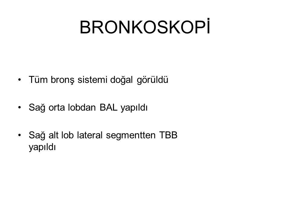 BRONKOSKOPİ Tüm bronş sistemi doğal görüldü Sağ orta lobdan BAL yapıldı Sağ alt lob lateral segmentten TBB yapıldı